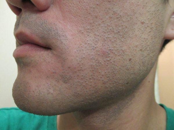 ヒゲ脱毛6回目翌日の肌状態:ゴリラクリニック1