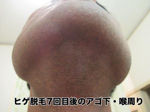 ヒゲ脱毛7回目後のアゴ下・喉周り