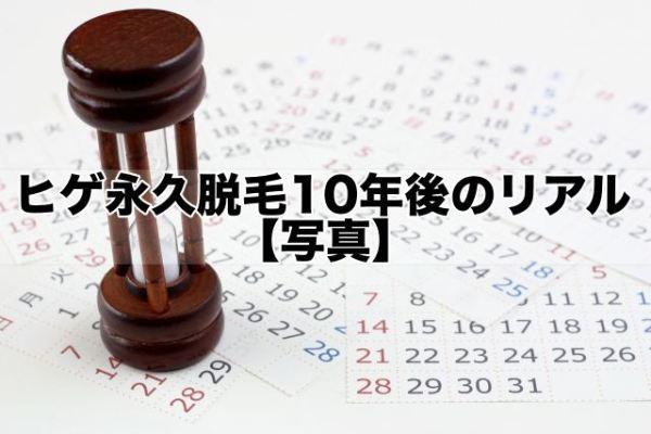 ヒゲ永久脱毛10年後のリアル【写真】