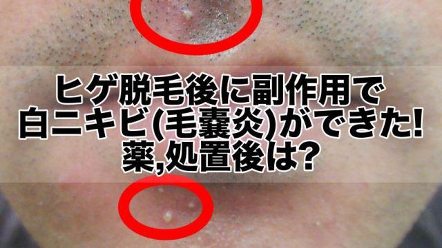 ヒゲ脱毛後に副作用で白ニキビ(毛嚢炎)ができた!【写真】薬,処置後は?