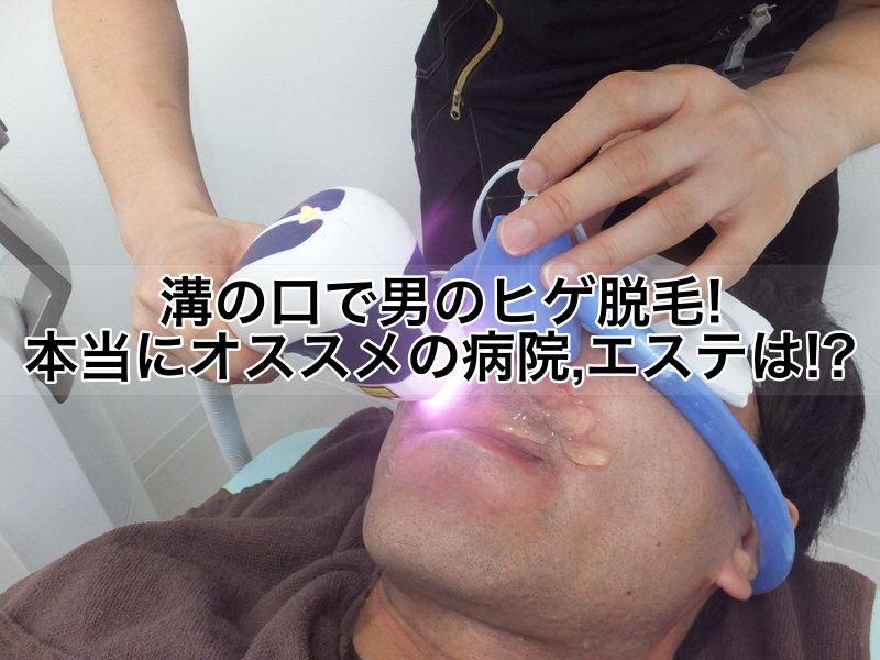 溝の口で男のヒゲ脱毛!本当にオススメの病院,クリニック,エステは!?