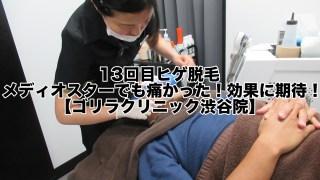 13回目ヒゲ脱毛:メディオスターでも痛かった!効果に期待!【ゴリラクリニック渋谷院】