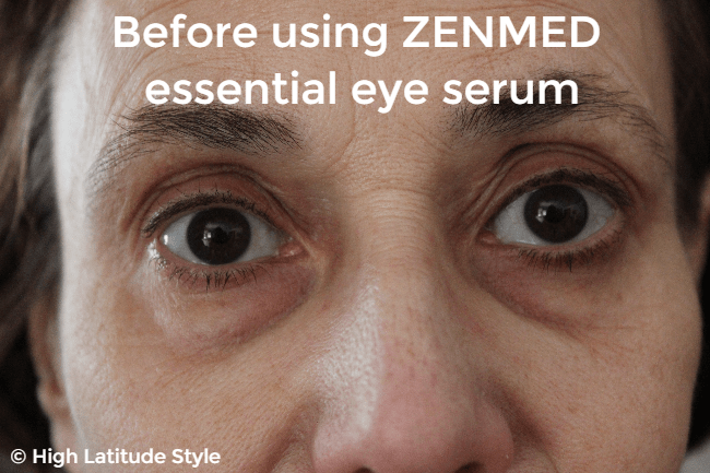 #beautyover50 dark circles before using an eye serum