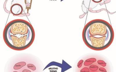 Científicos comprueban que la combinación de dos medicamentos podría revertir la artrosis