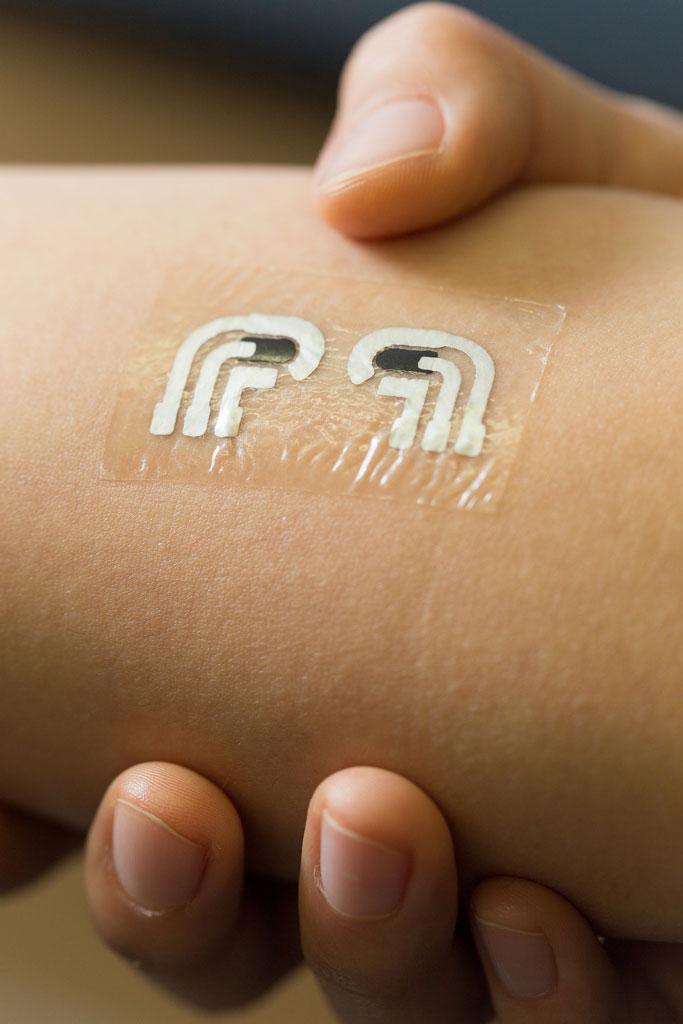 Diabetes. Uma tatuagem temporária para controlar os índices de glicose