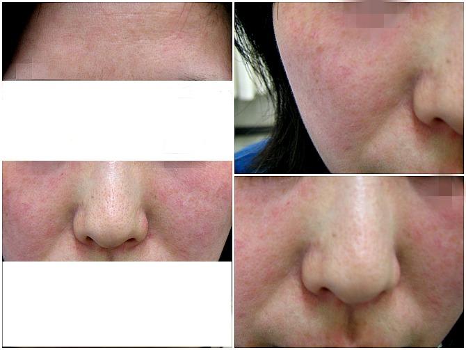化粧水による皮膚炎