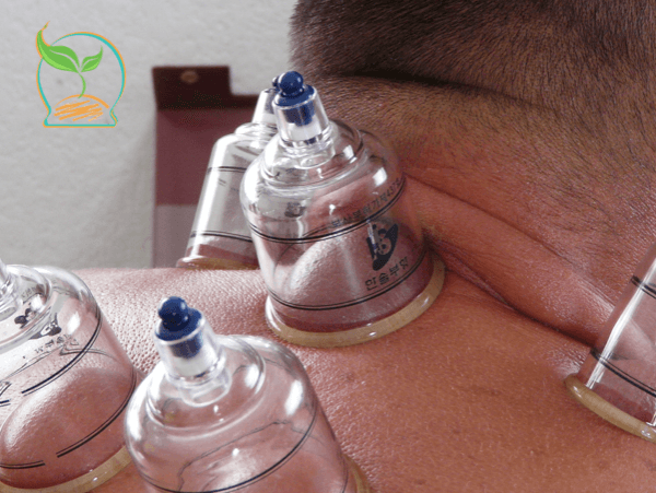 hijama-stress-antistress-anxiete-cupping3