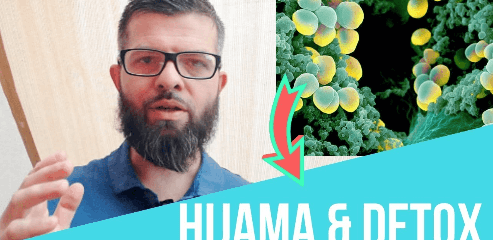 hijama detox cupping therpy ventouse