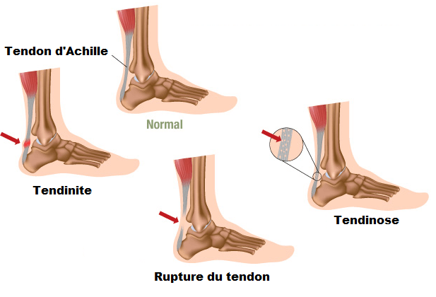tendon-d'achille-hijama-ventouse-douleur-tendinite-3