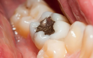 pic-white-fillings-300x187