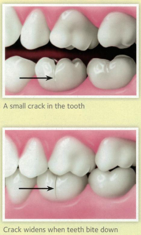 cracked tooth root