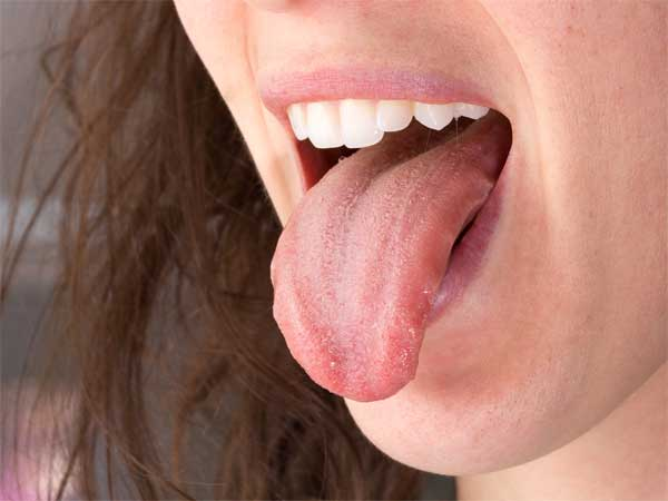 What you can eat to cure mouth ulcers