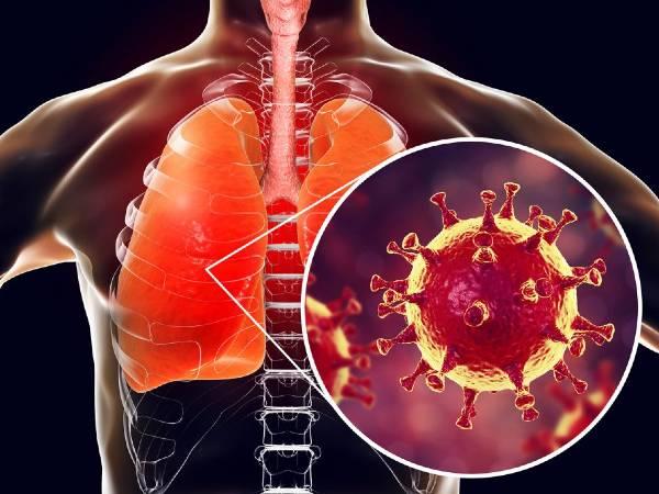 कोरोना के नए स्ट्रेन में फैल रहा है कोविड निमोनिया, जानिए इसके खतरे और लक्षणों के बारे में