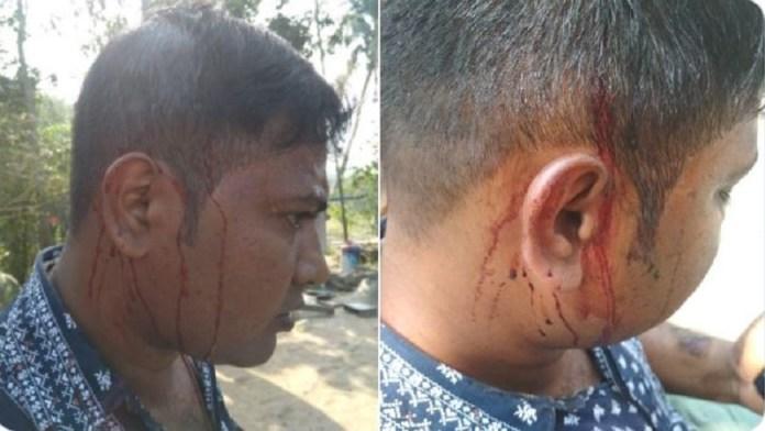 मोदी रैली BJP हमला