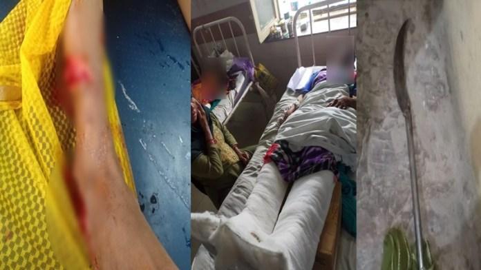 इंदौर इलियास पैर काटा