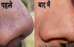नाक पर से काले दाने या Blackheads हटाने के घरेलू उपाय