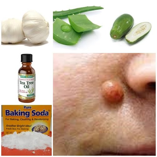 wart remedies