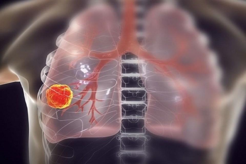 लंग कैंसर की 3 स्टेज क्या होती है? कैसे इस बिमारी से जंग जीतेंगे संजय दत्त!