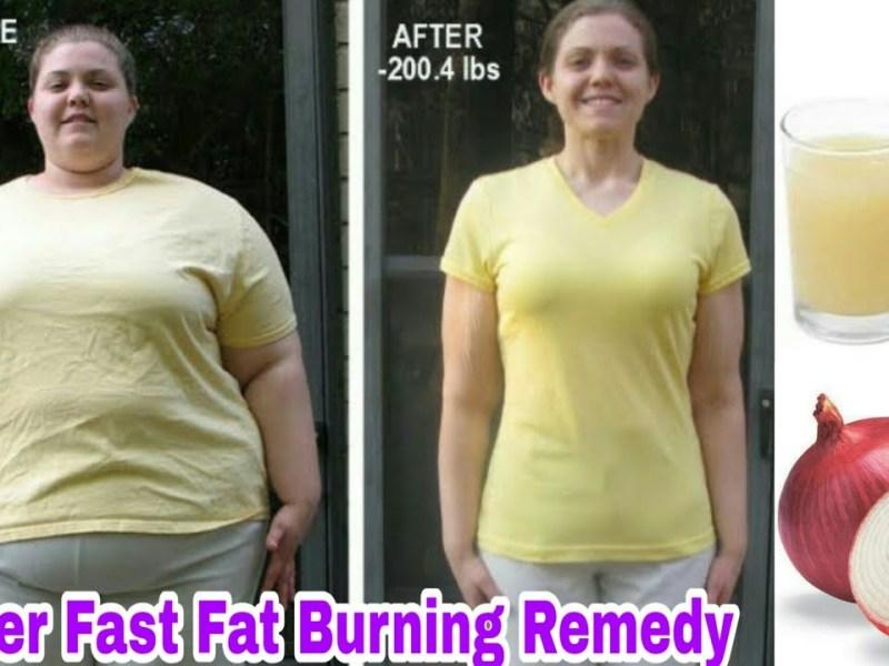 मोटापा कम करने के लिए रामबाण है प्याज, इस तरह से करें इस्तेमाल