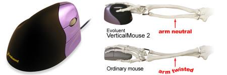 vertical_mouse.jpg