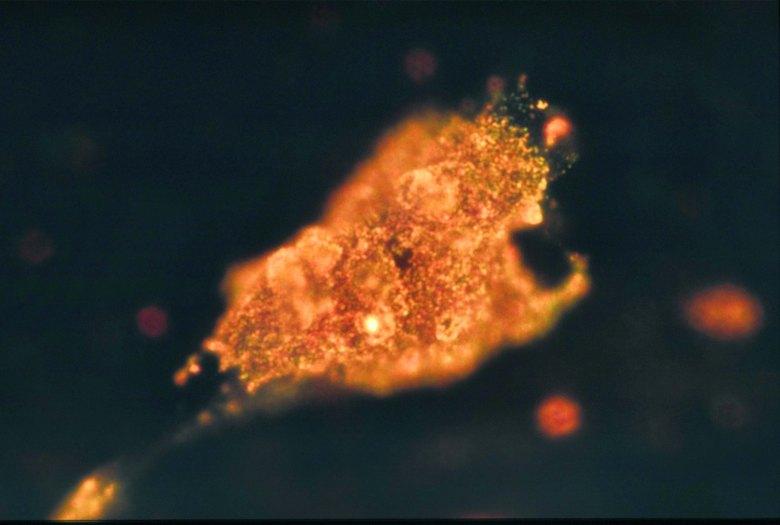 HOC_cancer_cells