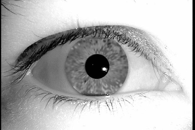 ¿Iris artificial?