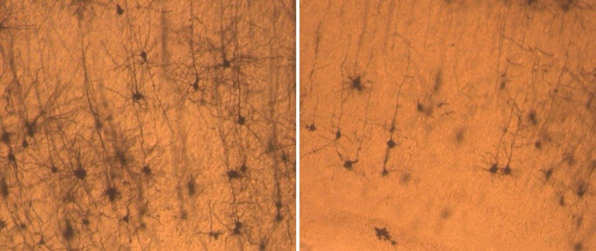 Descubren las raíces moleculares del síndrome de Down