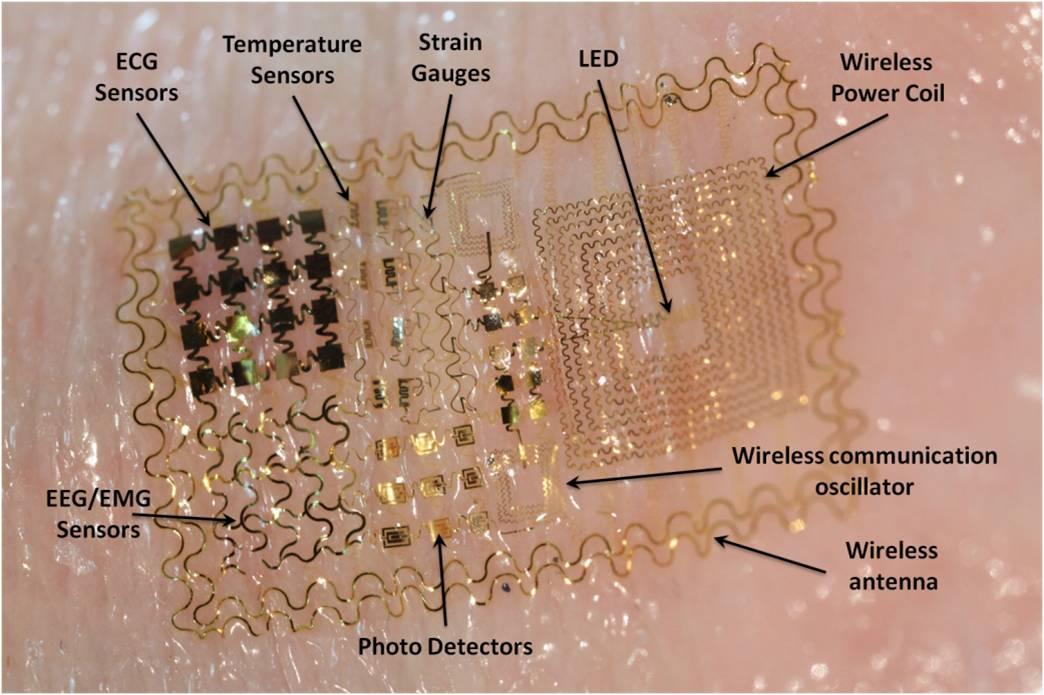 Seguimiento de pacientes con sensores electrónicos impresos en la piel