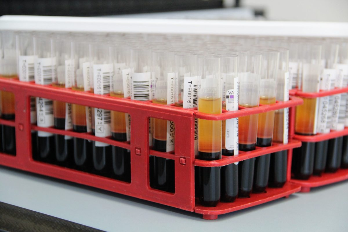 donación de sangre, terapia CRISPR