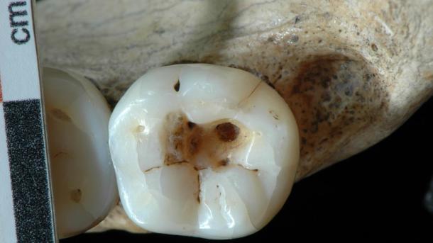 dentistas prehistçoricos