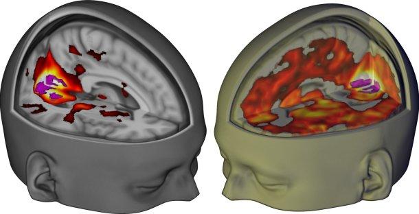 LSD en el cerebro