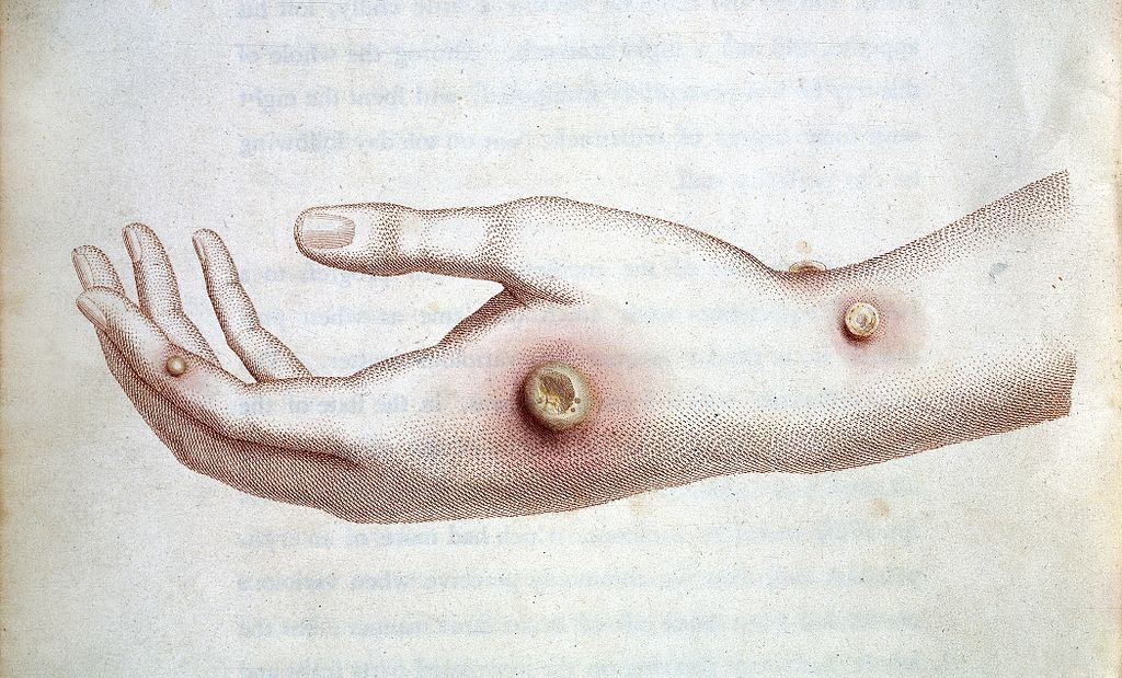 viruela