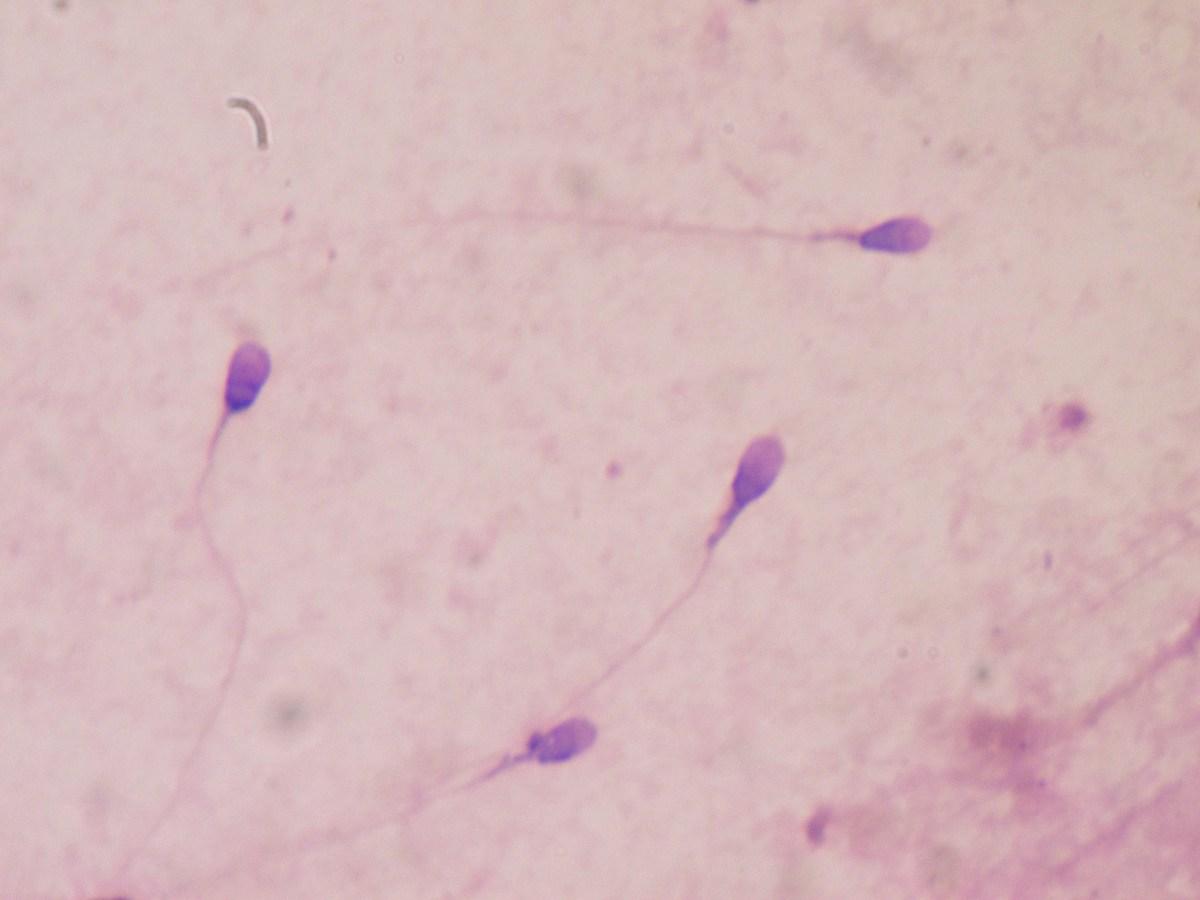 Movimiento de espermatozoides