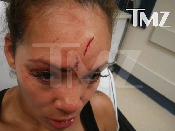 Evelyn-Lozada-forehead-assault-photo
