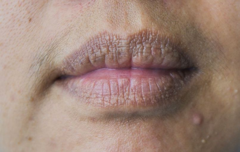 Precancer Lips And Skin | Lipstutorial org