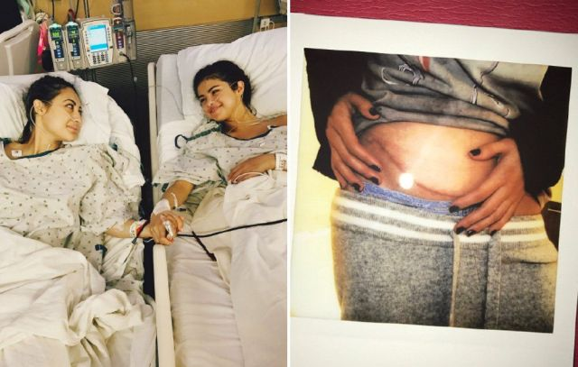 Image result for selena gomez kidney donation