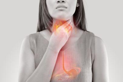 acid reflux nausea