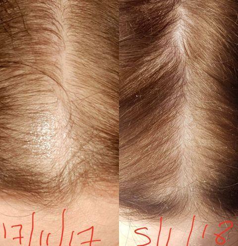 Does Rogaine Work For Receding Hairline Reddit | Hairsjdi org