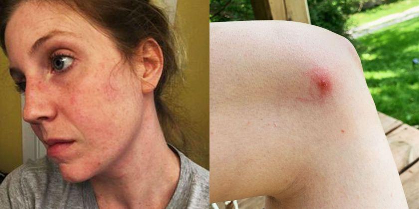 tick bite, tick bite photos, alpha gal syndrome ags, tick bite meat allergy