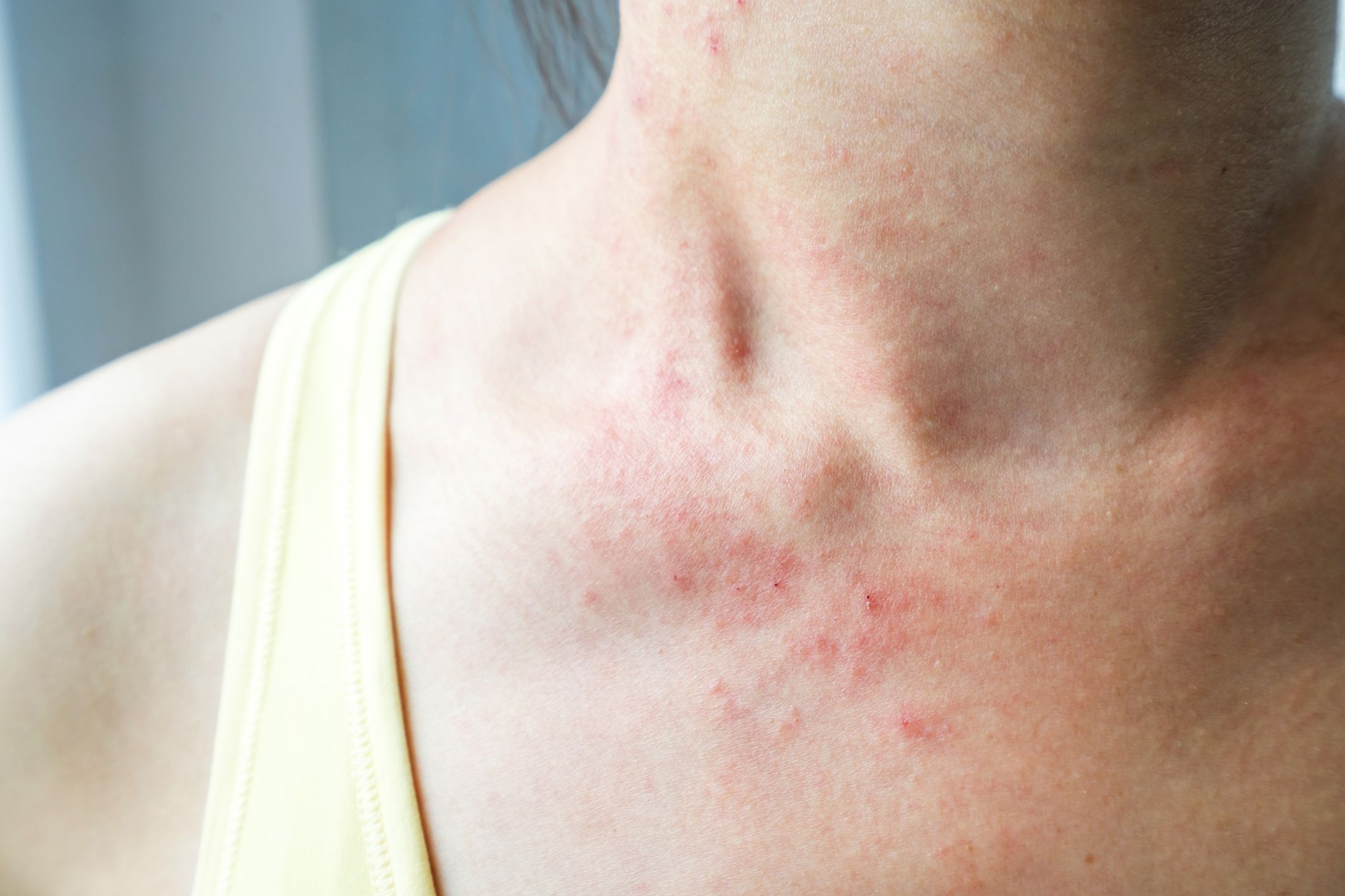 What Causes Stomach Fungal Skin Rash
