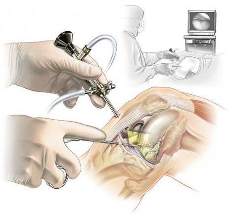Artroskopik Cerrahi