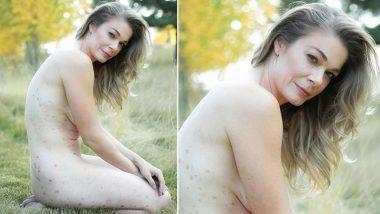 American actress LeAnn Rimes shares her Nude Photo, revealed psoriasis disease!  See Photo
