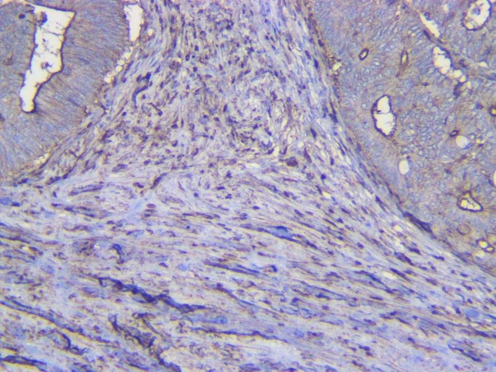 Indoleamine 2,3-dioxygenase