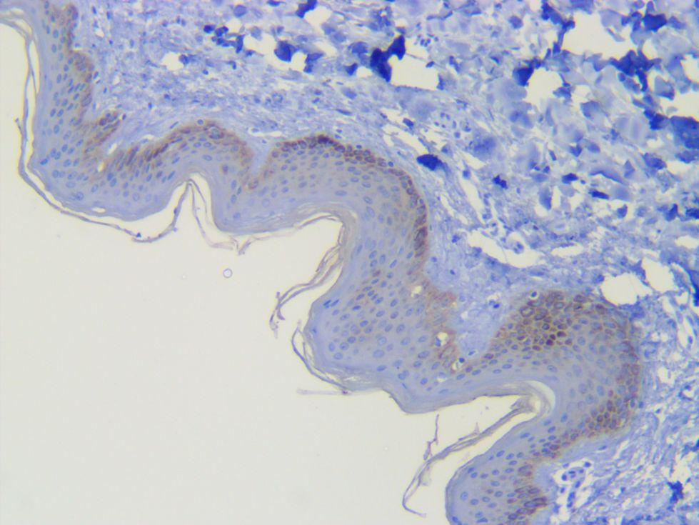 Human skin Pan keratin AE1-AE3