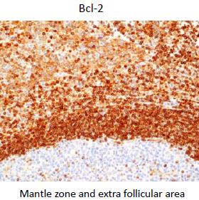 microscopic picture of tonsil stained with Bcl-2 antibody