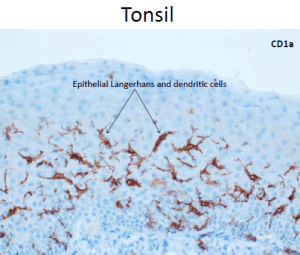 microscopic picture of tonsil stained with CD1a antibody