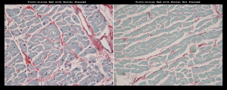 histology stain picro-sirius red