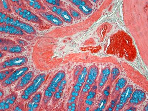 microscopic picture of colon stained with Movat's pentachrome