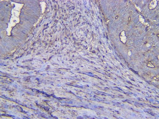 Human Colon adenocarcinoma IDO1
