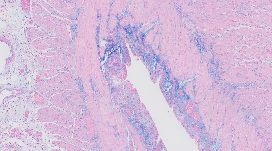Human intestine - Mowry's stain for colloidal iron (blue)
